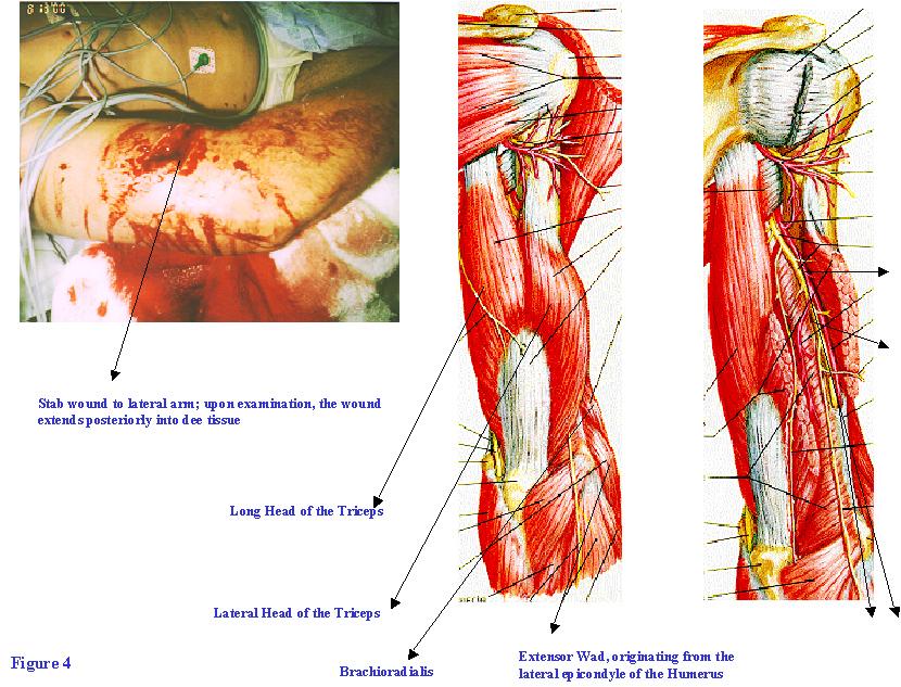 Dental Gross Anatomy Answers Week 2